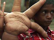 Un enfant de 8 ans avec des mains énormes